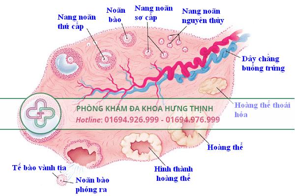Nguyên nhân gây u nang buồng trứng