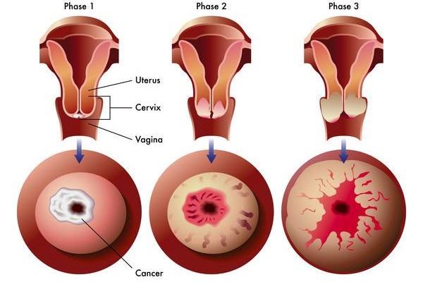 viêm cổ tử cung là gì